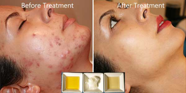 Image for Do this treatment 2 times only and say goodbye to all pimple, acne and scars on your face - Glowpink